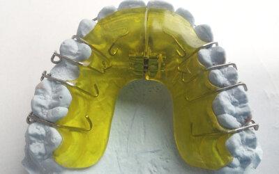 Sind schiefe Zähne ein Problem?