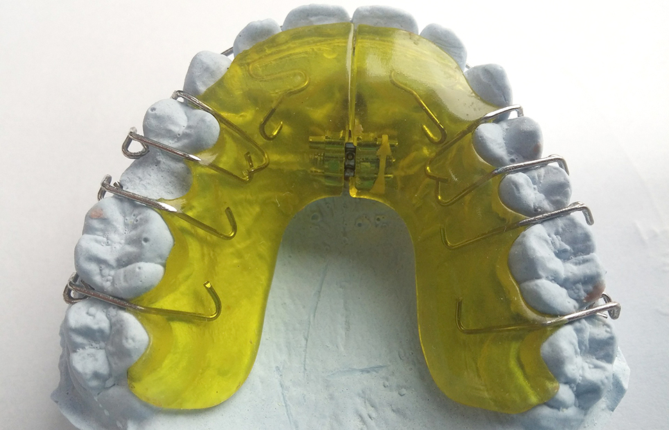 Gelbe Zahnspange
